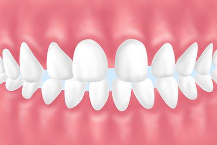 空隙歯列弓・すきっ歯