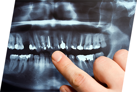 むし歯や歯周病の予防