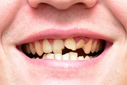 周りの歯をダメージから守る