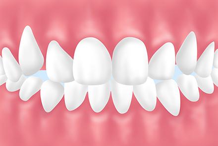 叢生・乱杭歯・八重歯