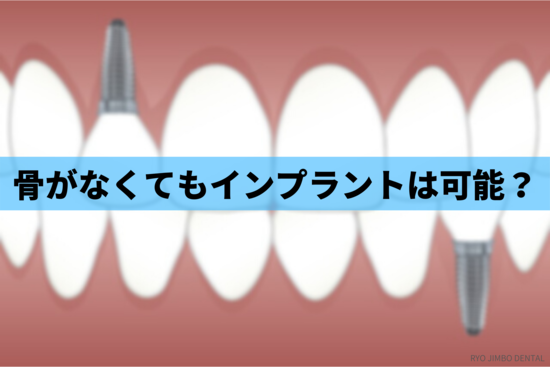 【歯科医師が回答】骨がない人でもインプラント治療はできるのか
