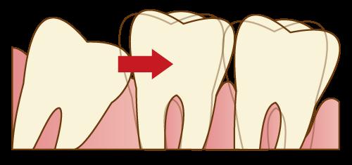 親知らずの生え方による歯並びへの影響