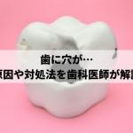 歯に穴が開いてしまった場合の原因や対処・治療法を歯科医院が解説