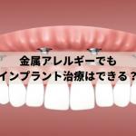 金属アレルギーでもインプラント治療は可能かを歯科医院が解説